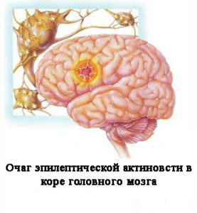 Беременность роды при эпилепсии